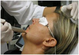 Laser 4D - Docteur Catherine EYCHENNE - Centre de médecine esthétique au Lilas près de Paris