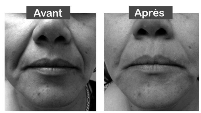 Lifting 4D sans chirurgie aux Lilas - Dr Eychenne