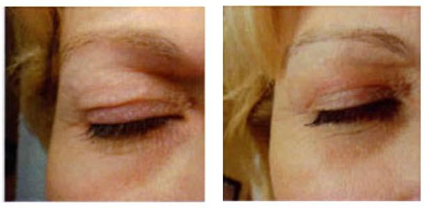 Résultats Blépharoplastie sans chirurgie aux Lilas - Dr Eychenne