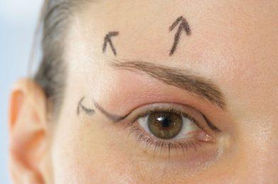 Blépharoplastie sans chirurgie aux Lilas - Dr Eychenne